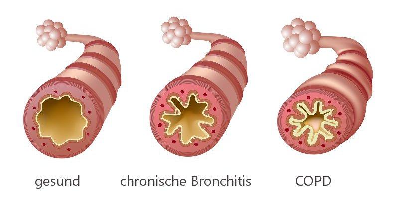zunehmende Verengung der Bronchien bei chronischer Bronchitis und COPD
